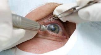 Признаки катаракты в ранней стадии