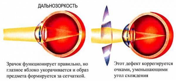 коррекция очками при дальнозоркости