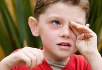 красные круги под глазами у ребёнка