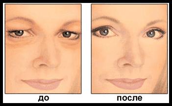 Операция по коррекции птоза. До и после поведенной процедуры