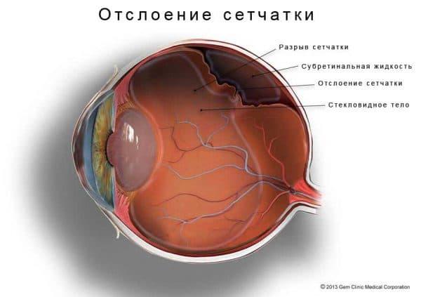 осложнение катаракты отслоением сетчатки