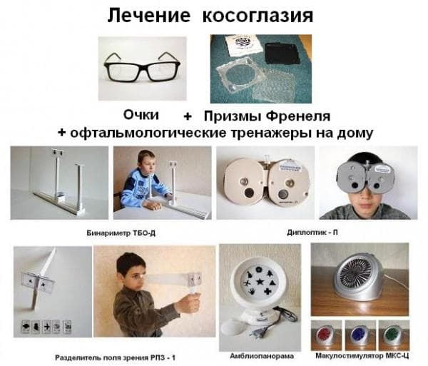 очки при косоглазии