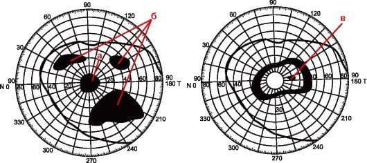 Пиреметрические данные по результатам обследования сетчатки глаза выглядят вот так. Черные пятна и есть результат отслоения.