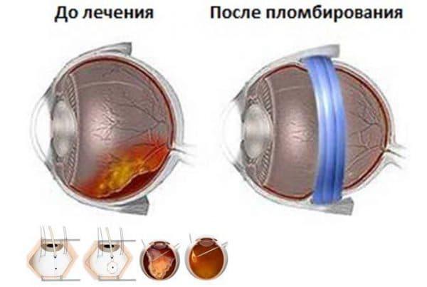 Пломбирование глаза для устранения воздушного мешка