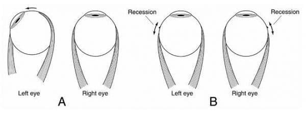 В) В данном случае исправить косоглазие позволяет рецессия в каждом глазу мышцы, поворачивающей глаз наружу.