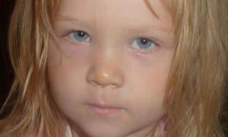фиолетовые круги под глазами у ребенка