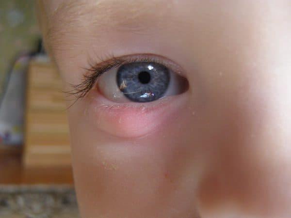 Халязион нижнего века у ребенка