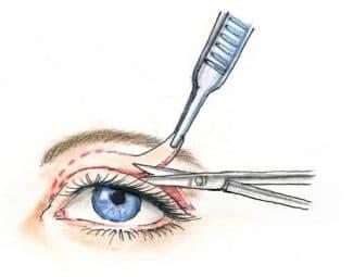 хирургическая коррекция птоза