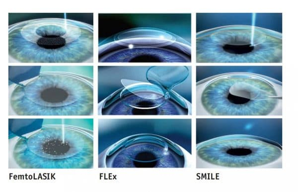 этапы проведения разных видов лазерной коррекции