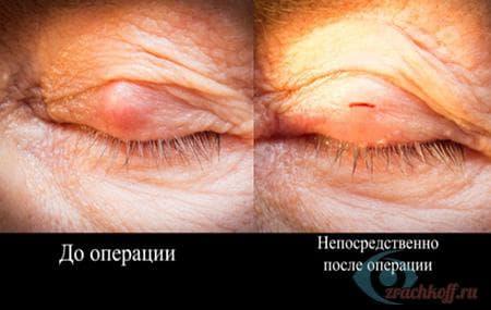до и после операции по удалению халязиона