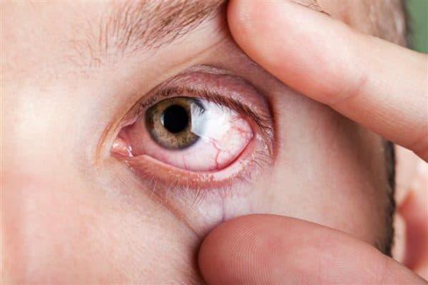 красный белок глаза