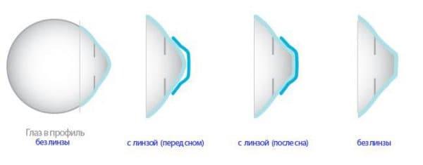 Мягкие торические линзы выполнены в виде тонкой плёнки, у которой внутренняя сторона, обращённая к глазу, в точности повторяет форму роговицы.
