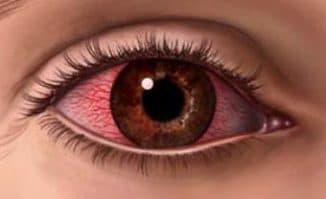 покрасение белка глаза