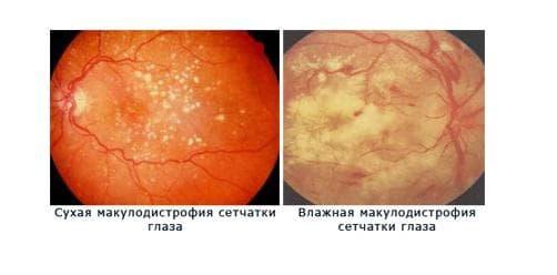 причины дистрофии сетчатки глаза