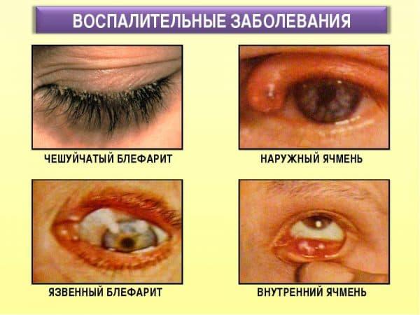 симптомы блефарита
