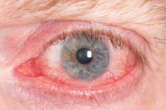 сосудистая сетка на белке глаза