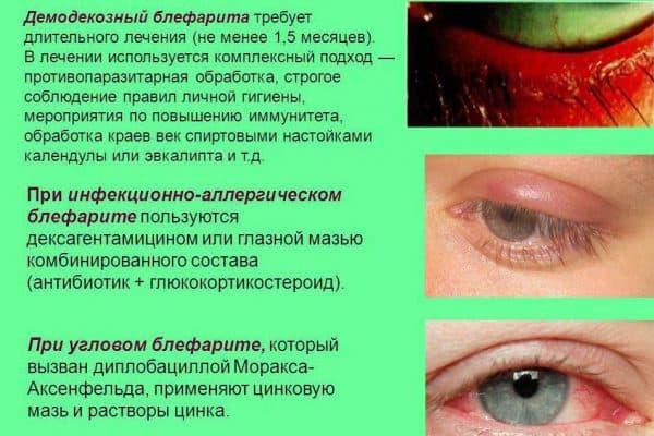 хронический блефарит