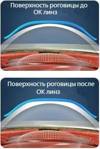 преимущества контактных линз ночных