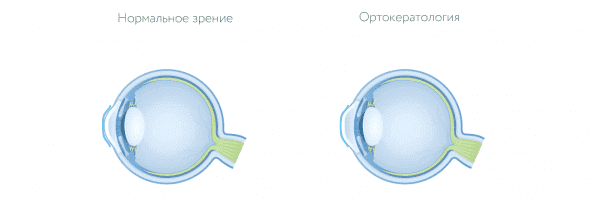 ортокератологические линзы