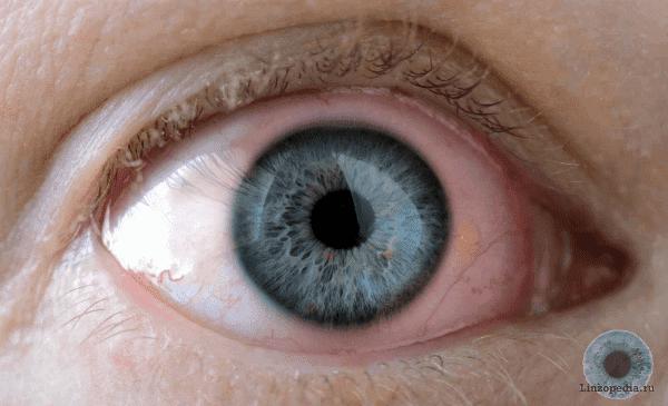 проявление аллергии на линзы