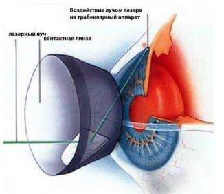 vidy-lazernogo-lecheniya-glaukomy