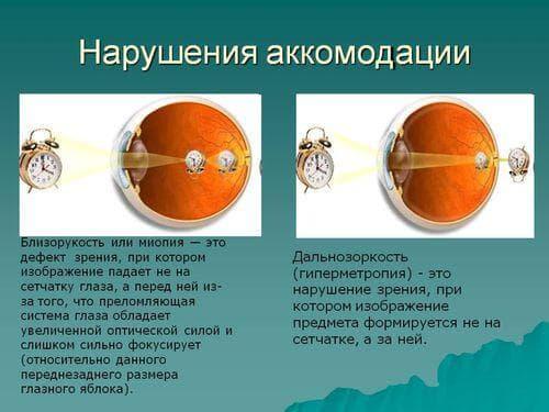 narusheniya-akkomodacii