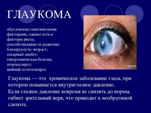 opredelenie-glaukomy