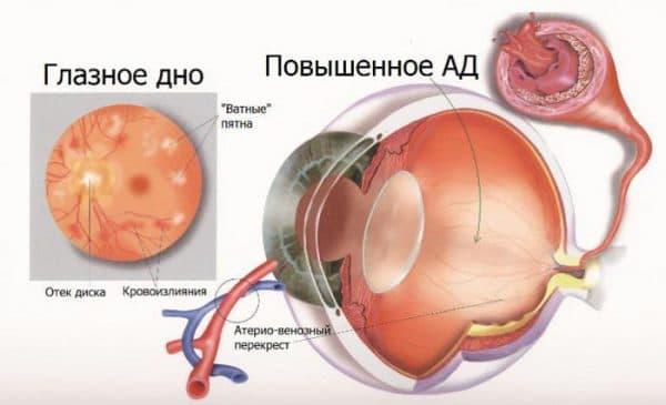 simptomy-angiopatii