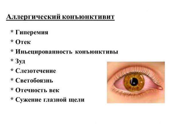 Антигистаминные капли в глаза