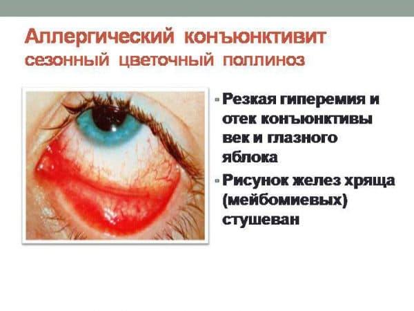 Антиаллергические капли для глаз