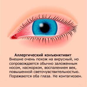 Капли в глаза от аллергии: названия и список, Кромогексал, Лекролин, на цветенние, на пыльцу, антигистаминные