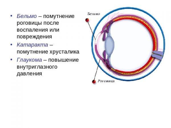 belmo-i-katarakta