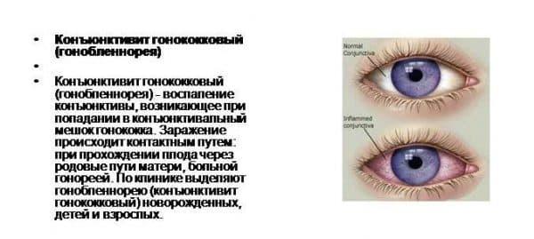 gonokokkovyj-konyunktivit
