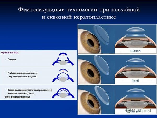Кератопластика