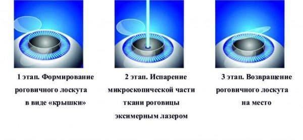 Методика Ласик