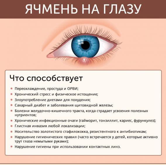 prichiny-vozniknoveniya-yachmenya