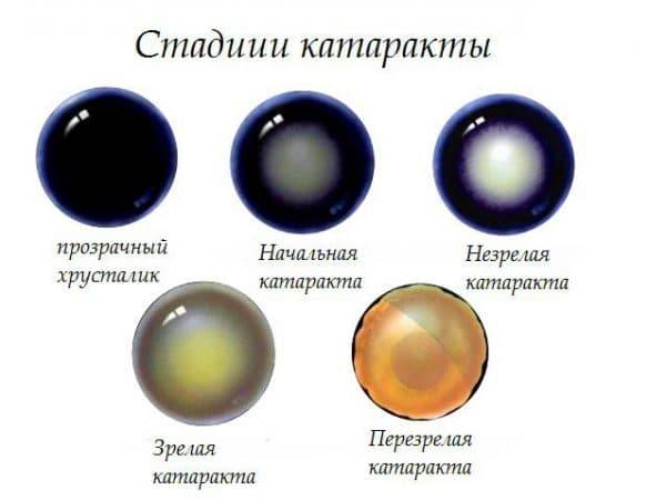 развитие катаракты