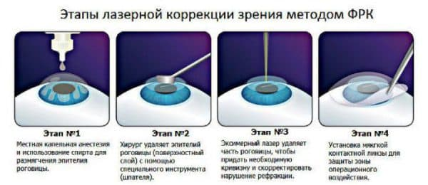 etapy-lazernoj-korrekcii-frk