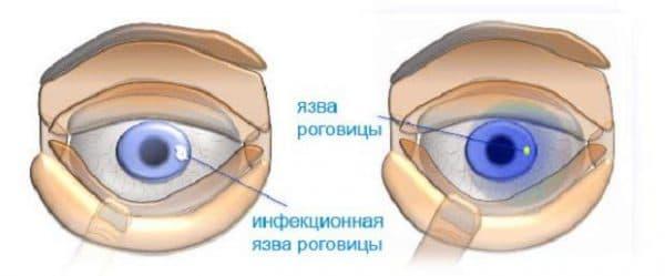 yazva-rogovicy