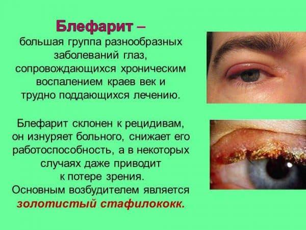 blefarit