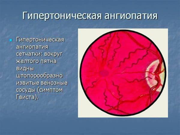 gipertonicheskaya-angiopatiya