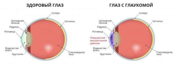 Капли при катаракте глаза