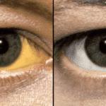 Почему желтеют белки глаз и что нужно делать