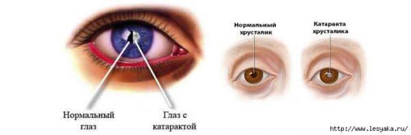 kak-vyglyadit-glaz-s-kataraktoj