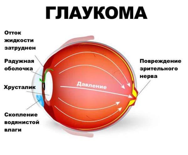 opredelenie-zabolevaniya-glaukoma