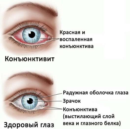 Противомикробные капли для глаз