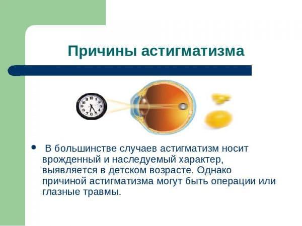 prichiny-astigmatizmy
