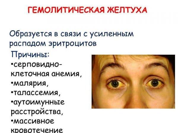prichiny-vozniknoveniya-zheltuxi