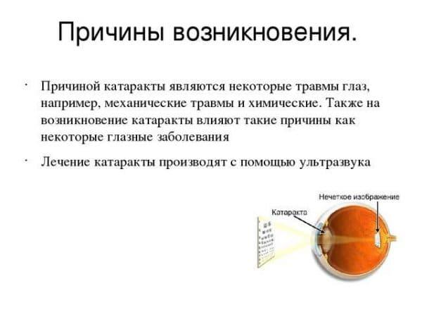prichiny-vozniknoveniya-katarakty