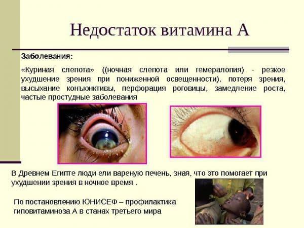 Куриная слепота болезнь у человека